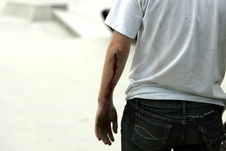 battle wounds
